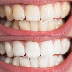 Closeup of teeth before and after teeth whitening