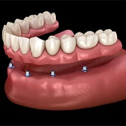 Animated dental implant retained denture