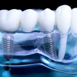 a model of a mouth with dental implant supported fixed bridge