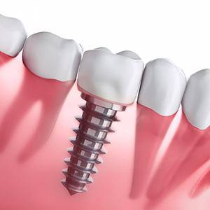 Diagram of dental implants in Fairfax