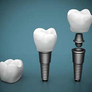 Diagram of the different parts of dental implants in Fairfax