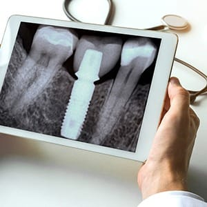 X-ray of dental implant after bone grafting in Fairfax