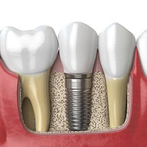 Diagram of how dental implants work in Fairfax