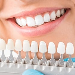 Patients smile compared with tooth color chart