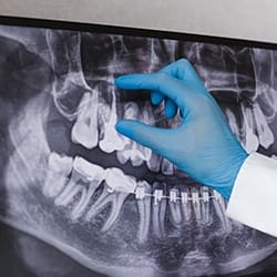 dentist pointing to an infected tooth on an X-ray