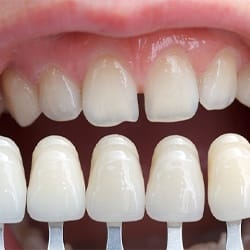 An up-close look at a shade guide that is used to determine the appropriate color for a patient's veneers