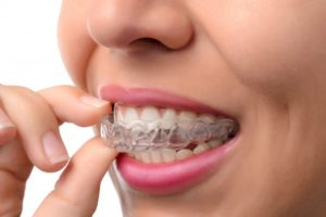 patient putting on invisalign tray